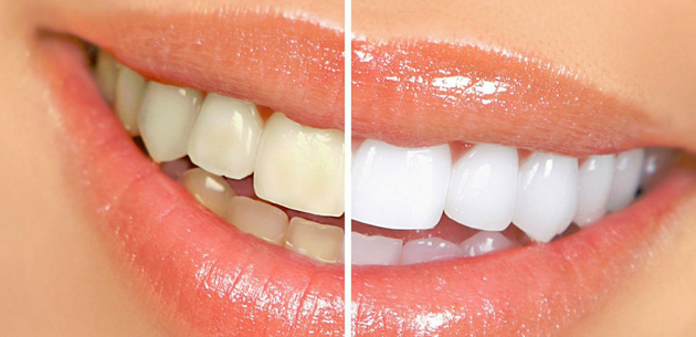 Dentist Ocoee Cosmetic Dentistry General Family